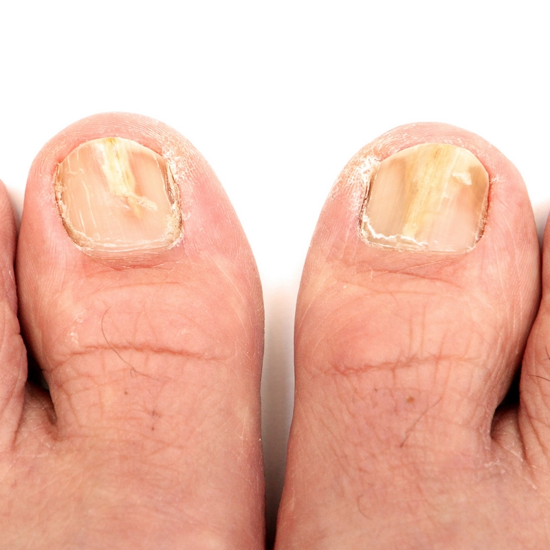 Fungal Infections Kensington Podiatry