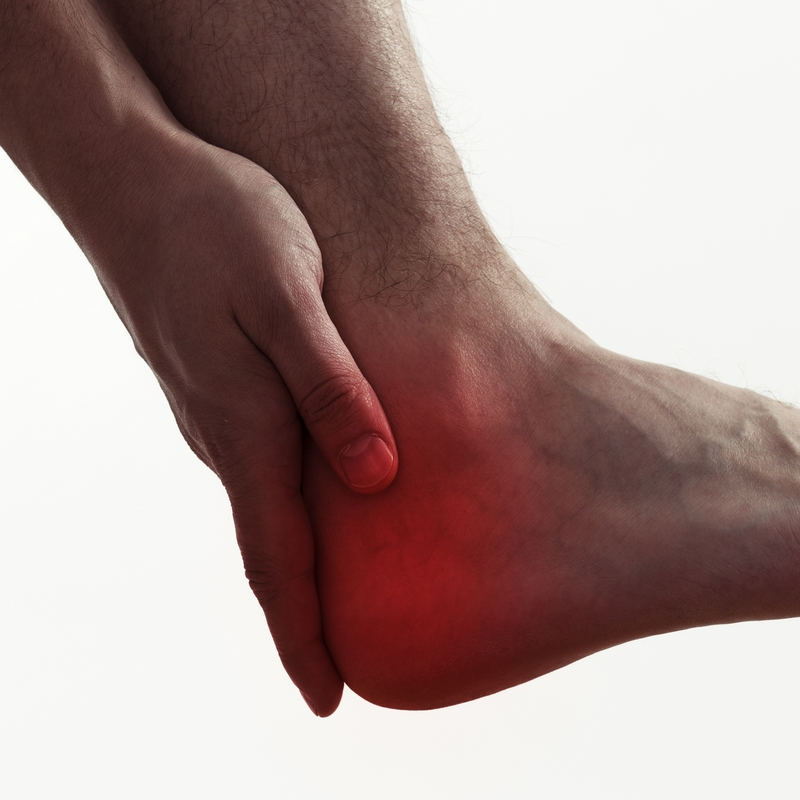 Heel spurs are a build-up of calcium on the bottom of the heel bone.