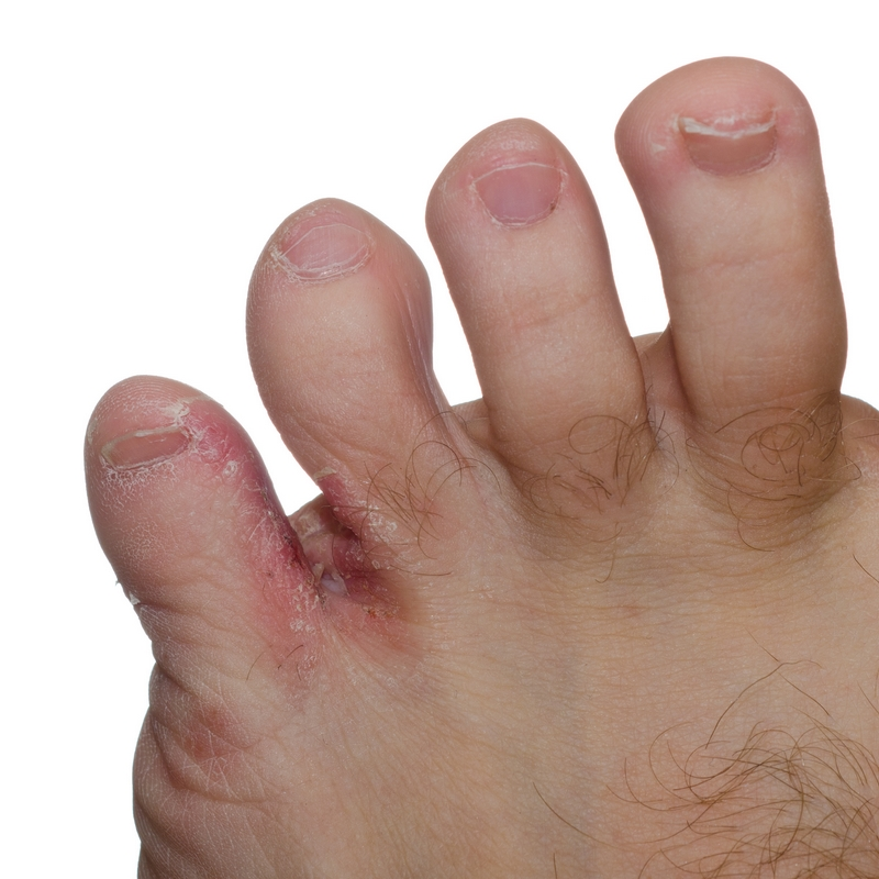 A corn is a type of painful callus (area of hardened skin) on your foot.