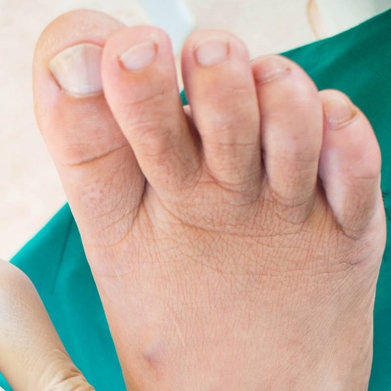 Hammer toes are permanent structural deformities