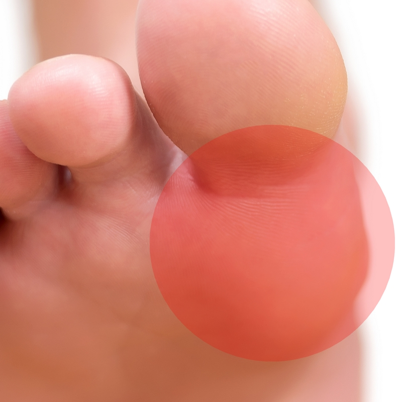 Sesamoiditis is the gradual onset of pain under the big toe joint.