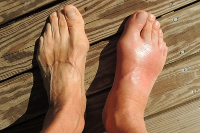 When Foot Pain Becomes Chronic Foot Pain