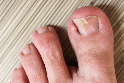 How to Deal Effectively with Ailments of The Toes